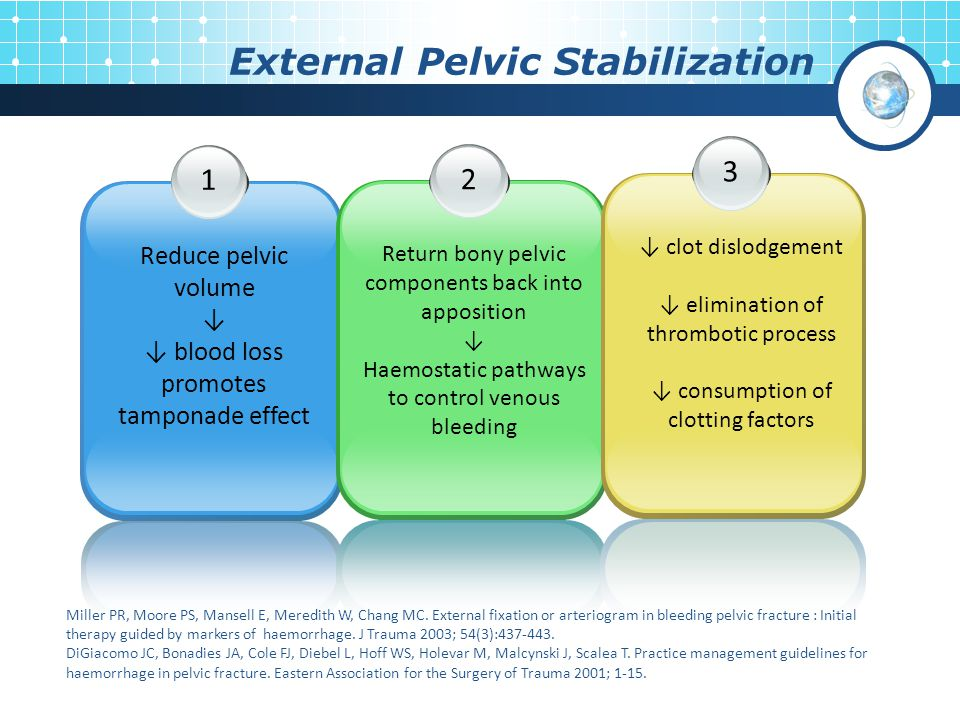 External Pelvic Stabilization 1 Reduce pelvic volume ↓ ↓ blood loss promotes tamponade effect 2 Return bony pelvic components back into apposition ↓ Haemostatic pathways to control venous bleeding 3 ↓ clot dislodgement ↓ elimination of thrombotic process ↓ consumption of clotting factors Miller PR, Moore PS, Mansell E, Meredith W, Chang MC.