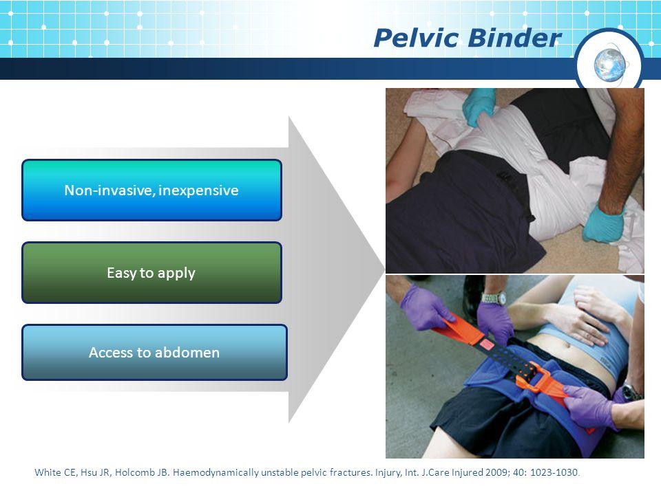 Pelvic Binder Non-invasive, inexpensive Easy to apply Access to abdomen White CE, Hsu JR, Holcomb JB. Haemodynamically unstable pelvic fractures. Inju