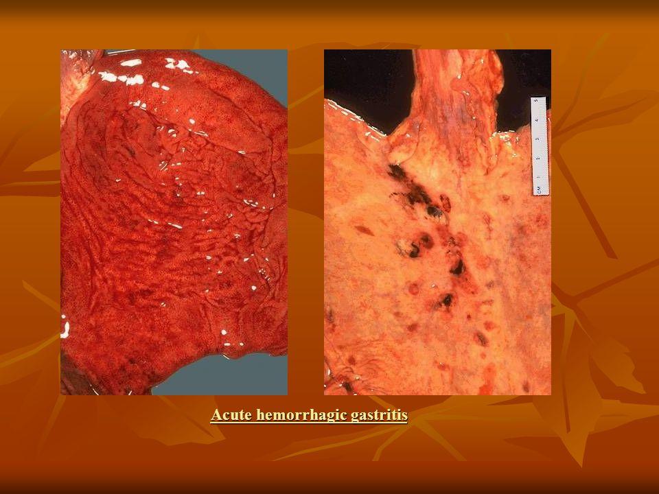 Acute hemorrhagic gastritis