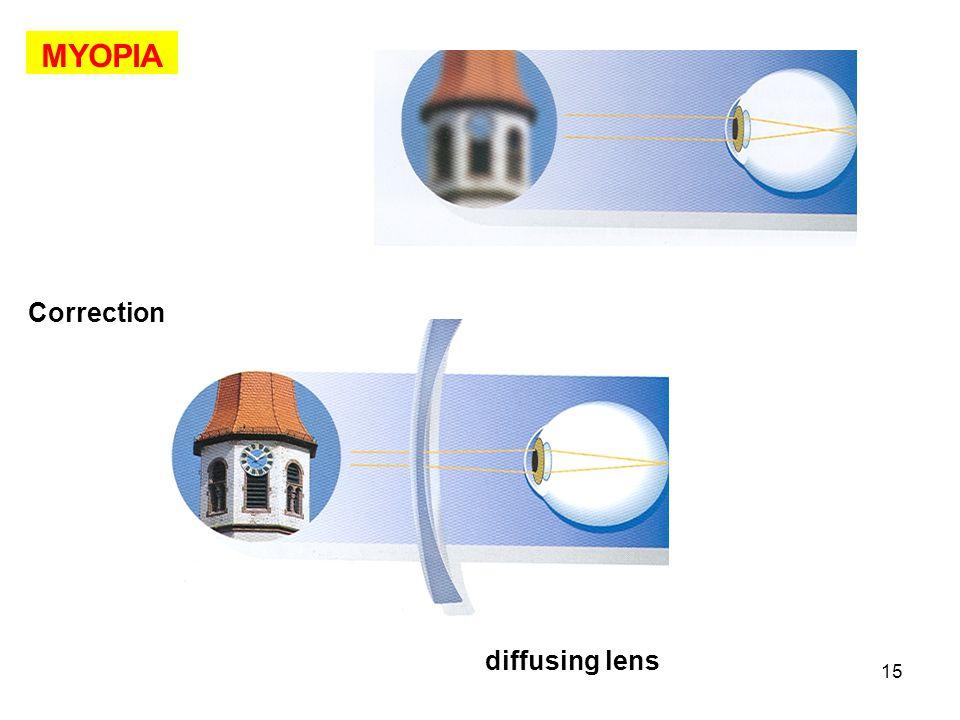 15 MYOPIA Correction diffusing lens