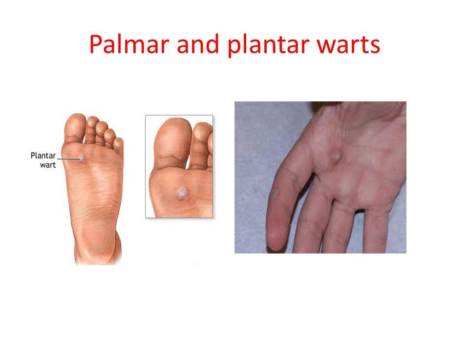 Palmar and plantar warts