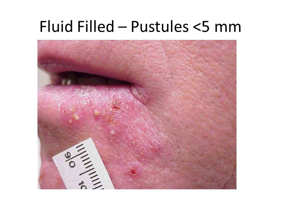 Fluid Filled – Pustules <5 mm