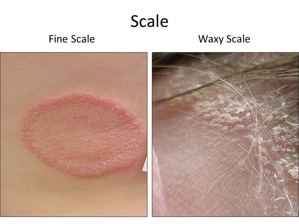 Scale Fine ScaleWaxy Scale