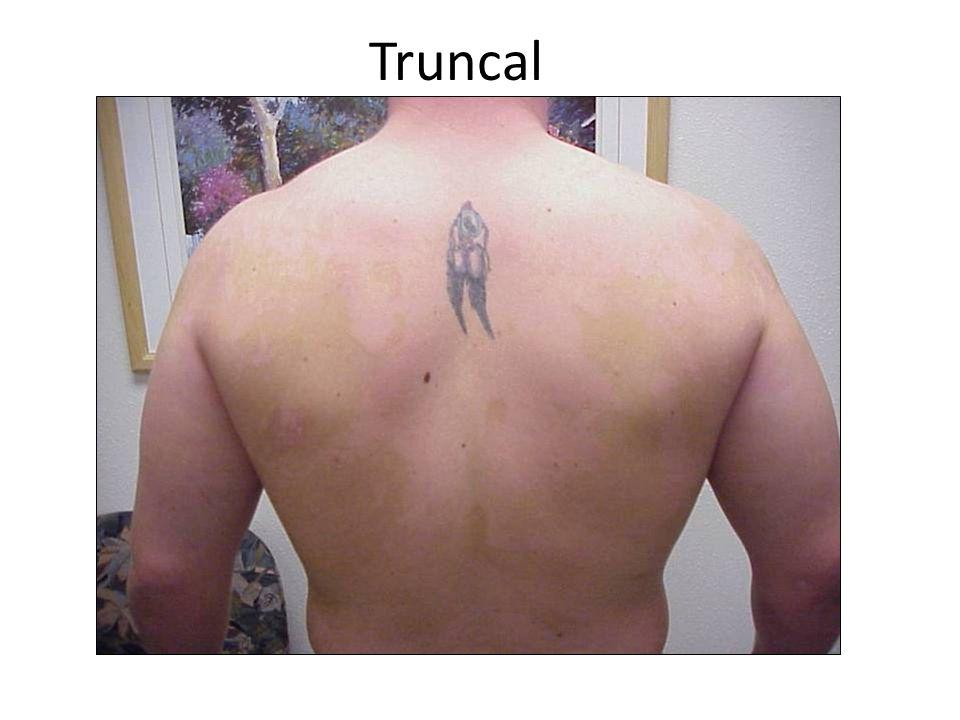 Truncal