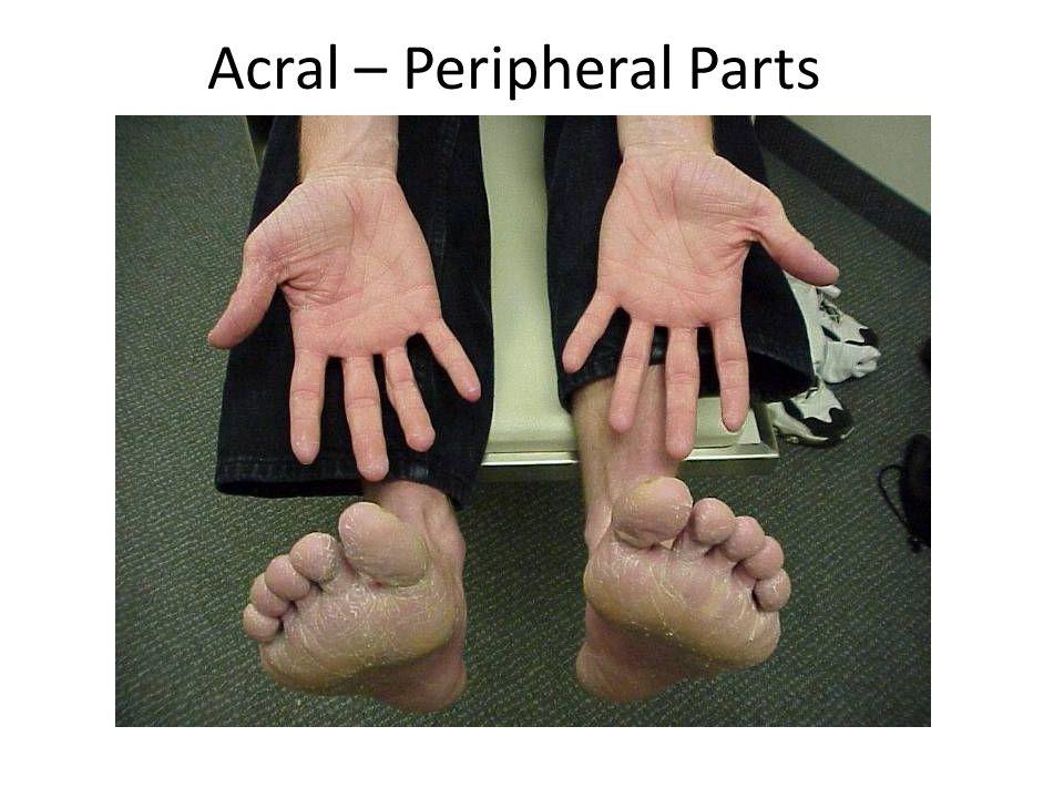 Acral – Peripheral Parts