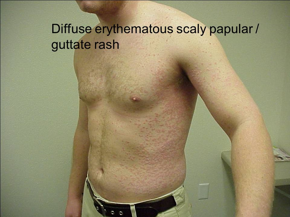 Diffuse erythematous scaly papular / guttate rash