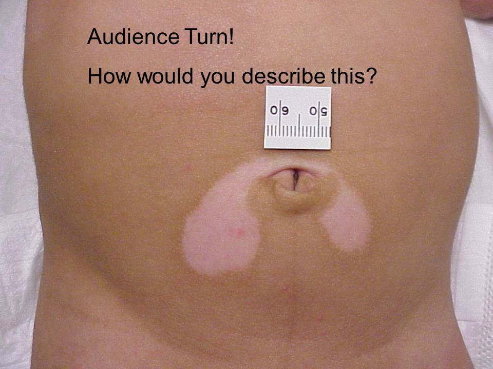 Audience Turn! How would you describe this?