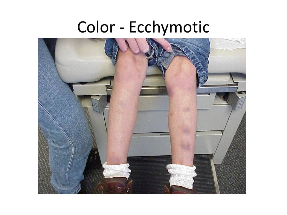 Color - Ecchymotic