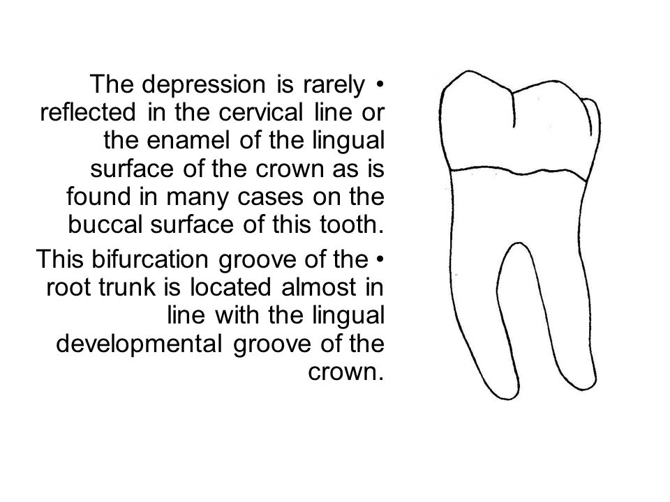 The depression is rarely reflected in the cervical line or the enamel of the lingual surface of the crown as is found in many cases on the buccal surf