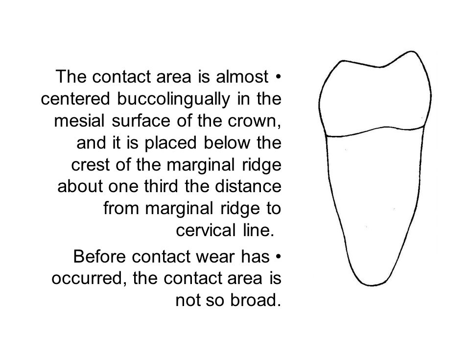 The contact area is almost centered buccolingually in the mesial surface of the crown, and it is placed below the crest of the marginal ridge about on