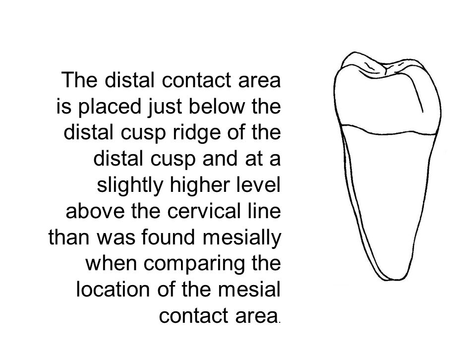 The distal contact area is placed just below the distal cusp ridge of the distal cusp and at a slightly higher level above the cervical line than was