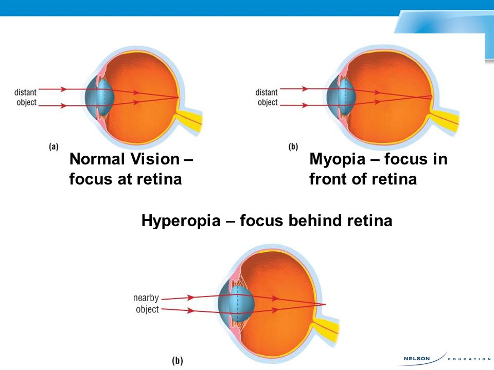 Sometimes the human eye is not able to focus on objects and create a sharply focused image. There are three common focusing problems: –hyperopia (far-