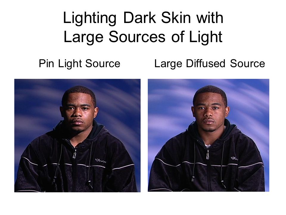 Lighting Dark Skin with Large Sources of Light Pin Light Source Large Diffused Source