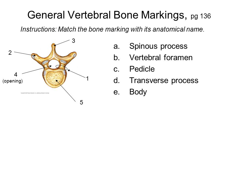General Vertebral Bone Markings, pg 136 a.Spinous process b.Vertebral foramen c.Pedicle d.Transverse process e.Body Instructions: Match the bone marki