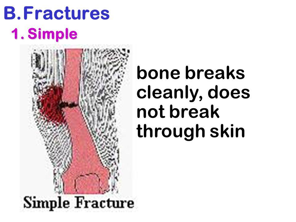 B.Fractures 1. Simple 1. Simple bone breaks cleanly, does not break through skin