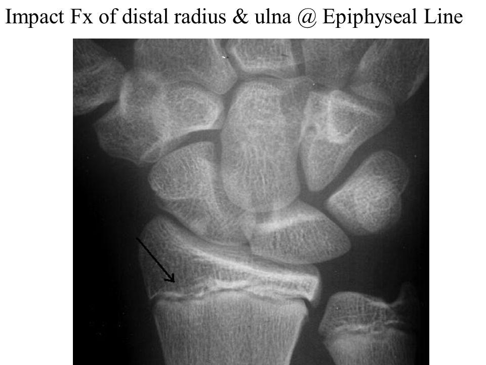 Impact Fx of distal radius & ulna @ Epiphyseal Line