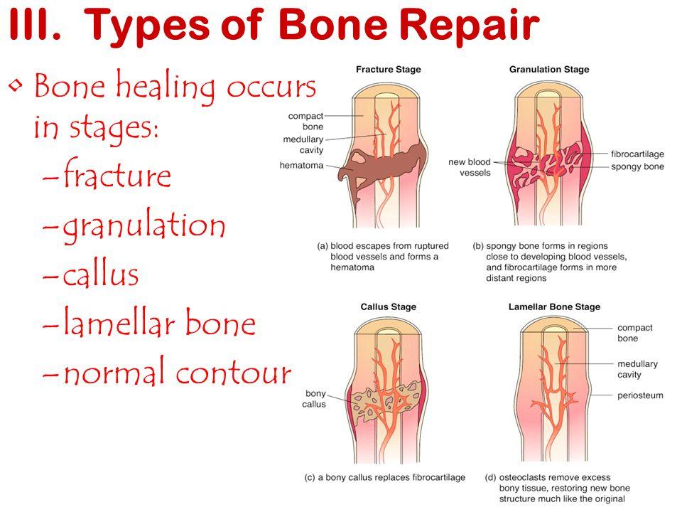 Bone healing occurs in stages: –fracture –granulation –callus –lamellar bone –normal contour III. Types of Bone Repair