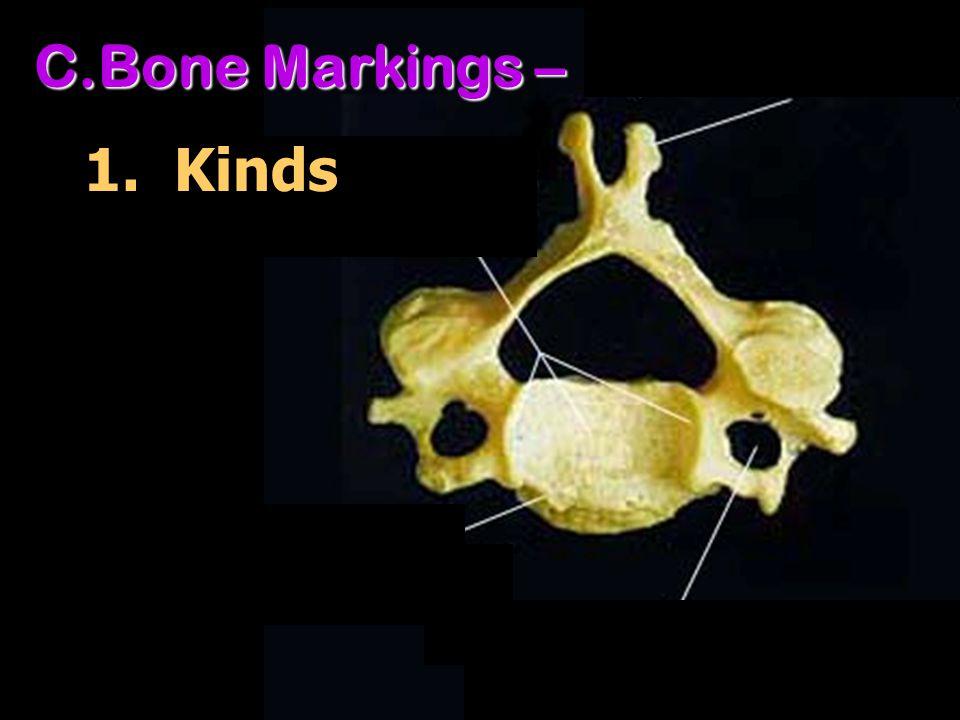C.Bone Markings – 1. Kinds