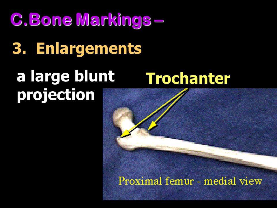 C.Bone Markings – 3. Enlargements Trochanter a large blunt projection