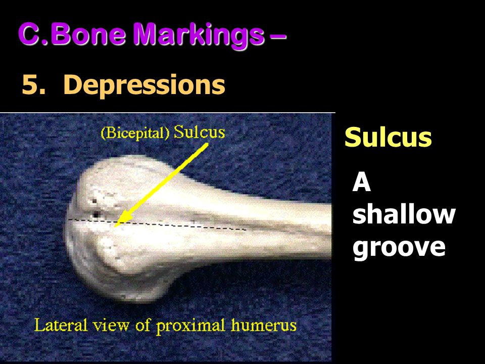C.Bone Markings – 5. Depressions A shallow groove Sulcus