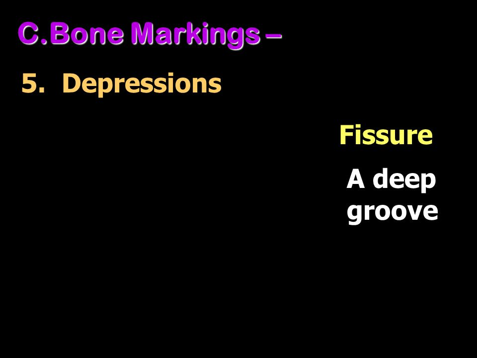 C.Bone Markings – 5. Depressions A deep groove Fissure