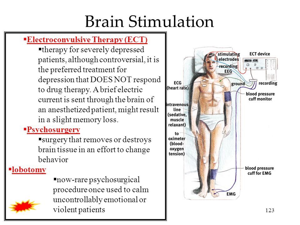 123 Brain Stimulation  Electroconvulsive Therapy (ECT)  therapy for severely depressed patients, although controversial, it is the preferred treatment for depression that DOES NOT respond to drug therapy.