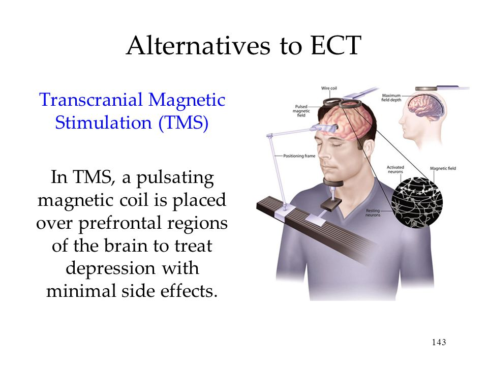 143 Alternatives to ECT Transcranial Magnetic Stimulation (TMS) In TMS, a pulsating magnetic coil is placed over prefrontal regions of the brain to treat depression with minimal side effects.