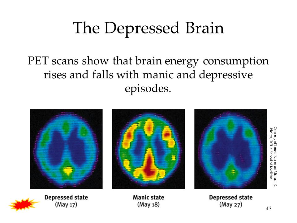 43 The Depressed Brain PET scans show that brain energy consumption rises and falls with manic and depressive episodes.