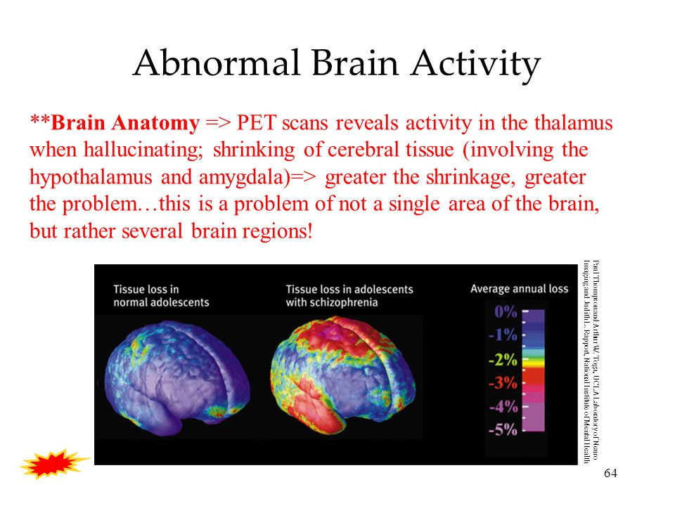 64 Abnormal Brain Activity Paul Thompson and Arthur W.