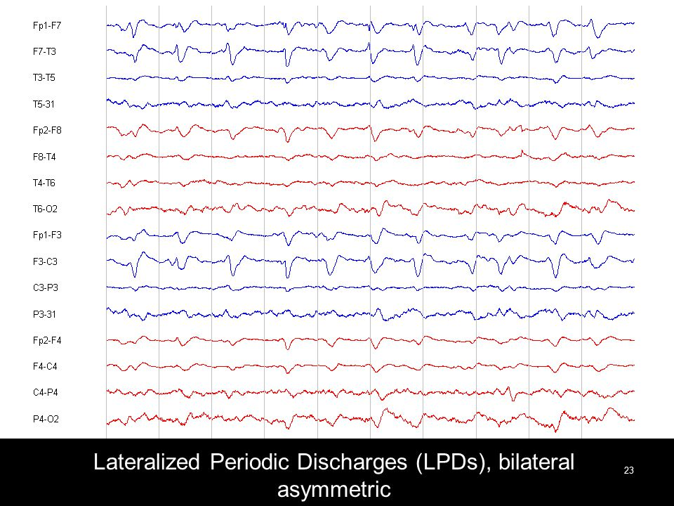 Lateralized Periodic Discharges (LPDs), bilateral asymmetric 23