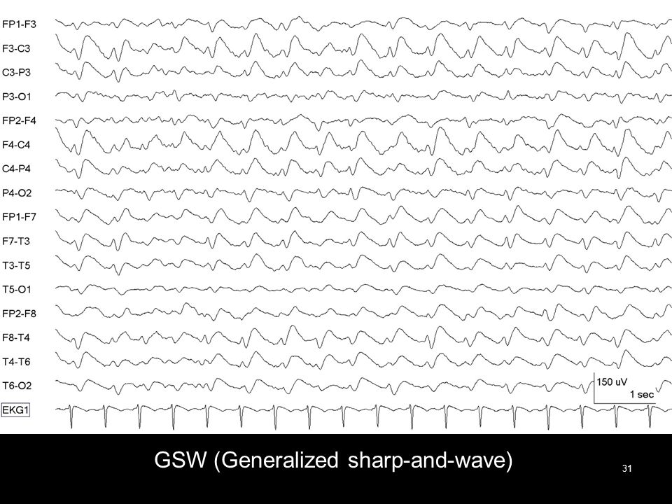 GSW (Generalized sharp-and-wave) 31