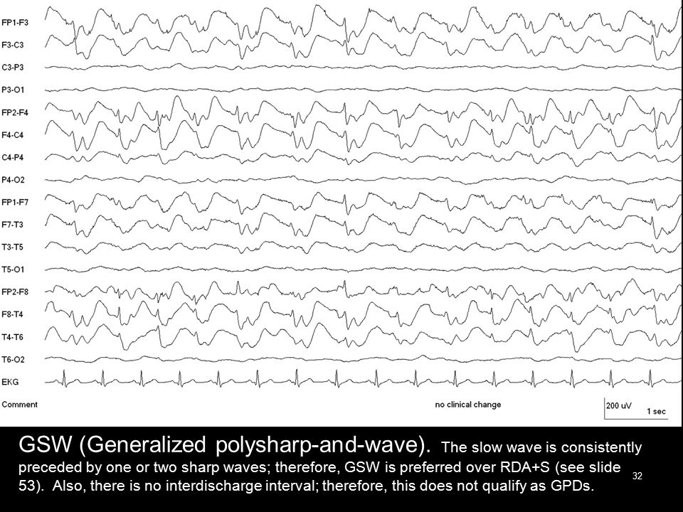 GSW (Generalized polysharp-and-wave). The slow wave is consistently preceded by one or two sharp waves; therefore, GSW is preferred over RDA+S (see sl