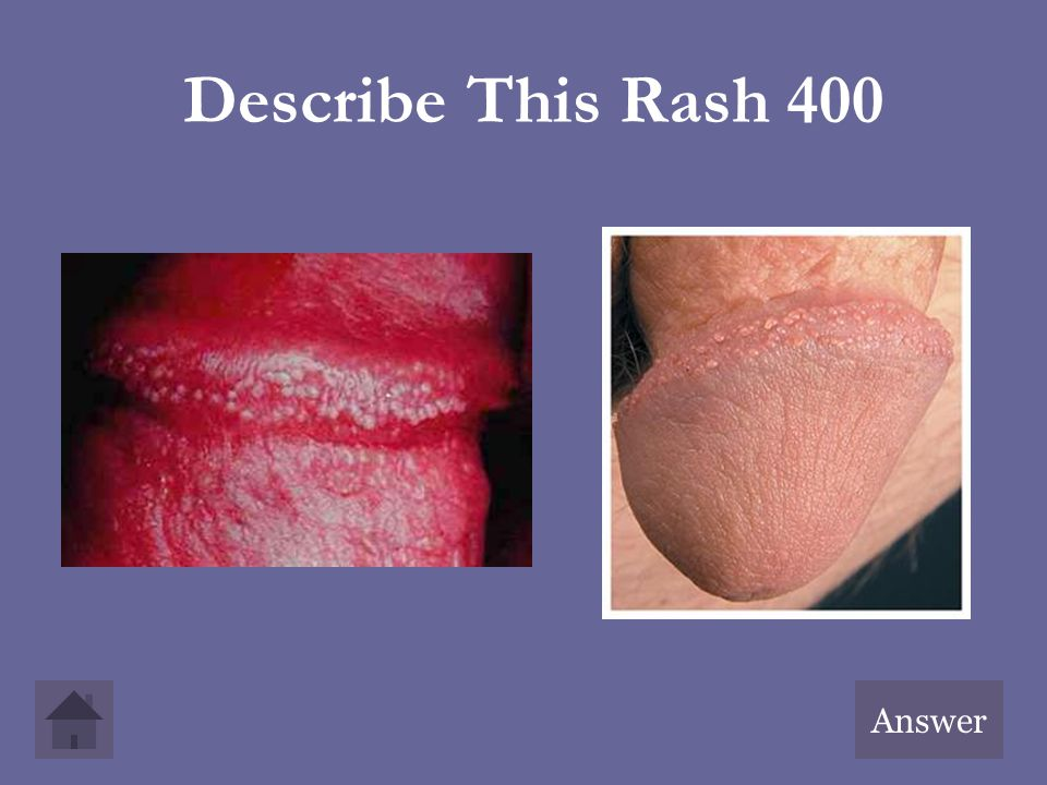 Describe This Rash 400 Answer