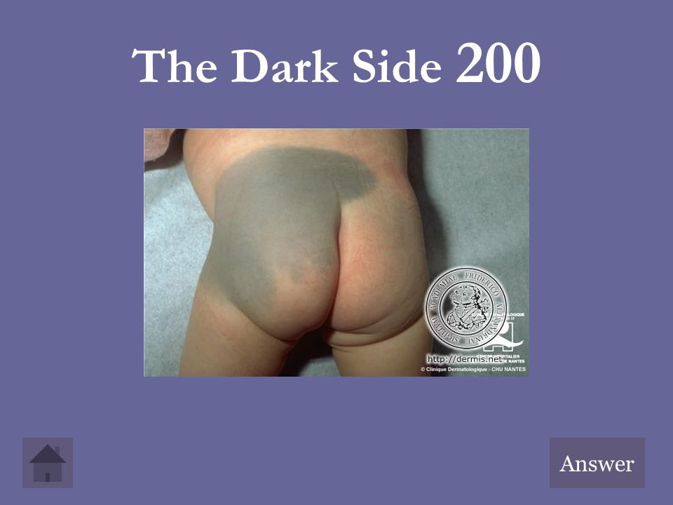 The Dark Side 200 Answer