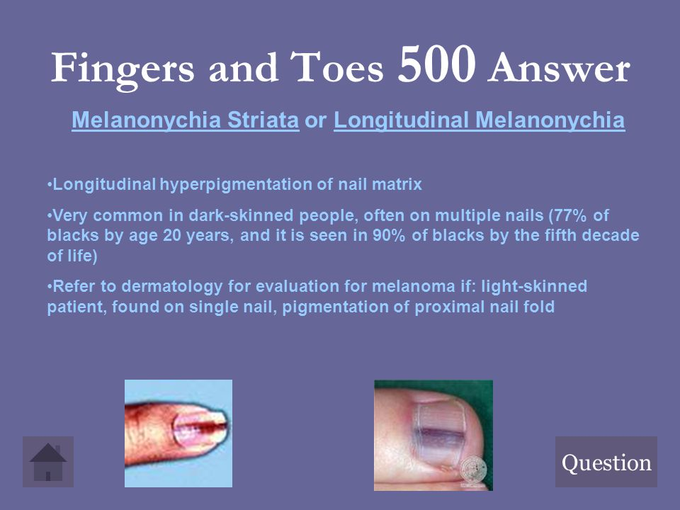 Fingers and Toes 500 Answer Question Melanonychia Striata or Longitudinal Melanonychia Longitudinal hyperpigmentation of nail matrix Very common in da