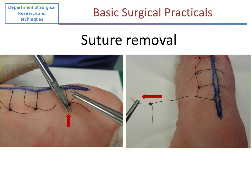 Department of Surgical Research and Techniques Basic Surgical Practicals Suture removal