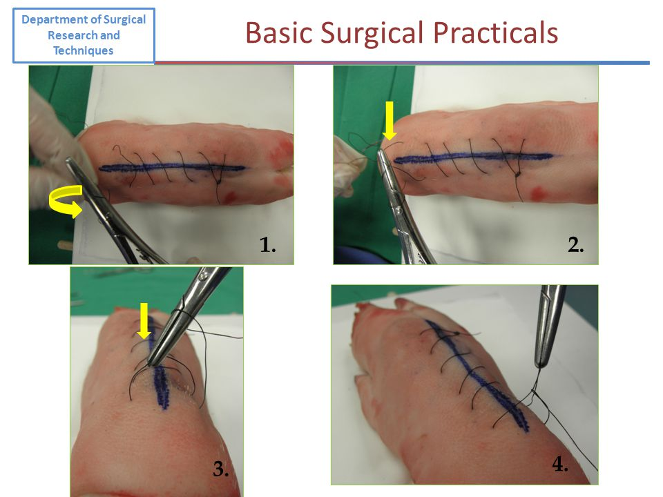 1.2. 3. 4. Department of Surgical Research and Techniques Basic Surgical Practicals