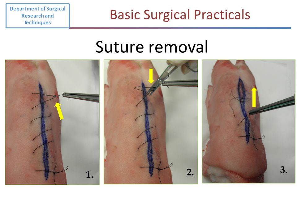 1. 2. 3. Suture removal Department of Surgical Research and Techniques Basic Surgical Practicals