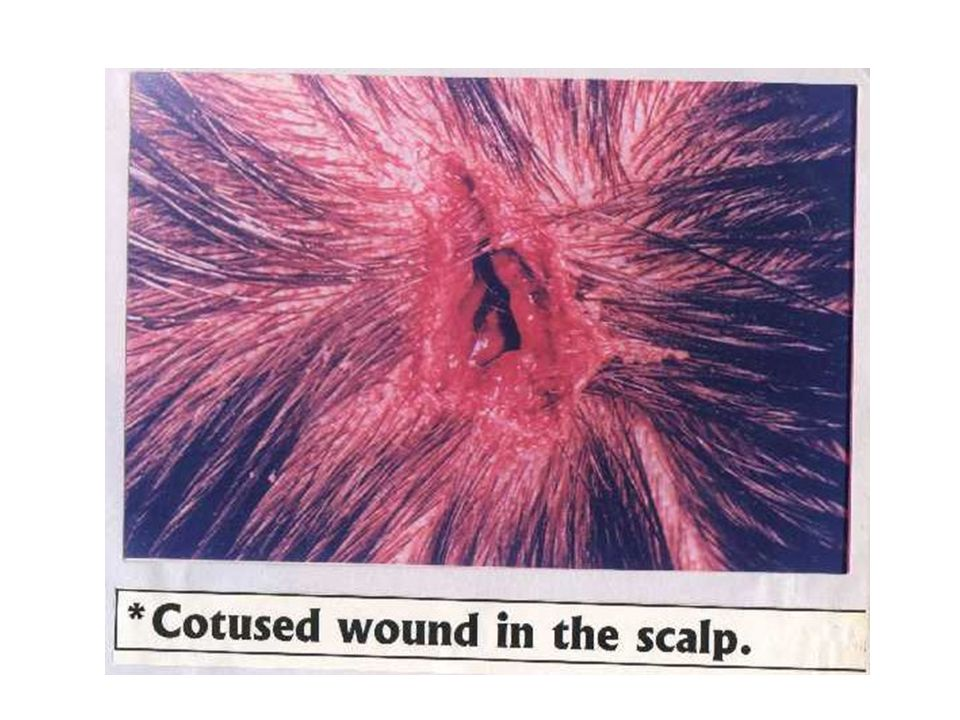 Diagnosis: Lacerations of the Scalp -Presenting part ( Scalp + Face) -Description of the lesion.simulating cut wound ( Blunt trauma split the skin & tissues into sharply-demarcated fashion).Close examination using a lens ( Bruised edges, hairs cross within the wound, tissue bridges, small nerves & vessels within the depth) -Causative agent (Blunt trauma) -Complications.