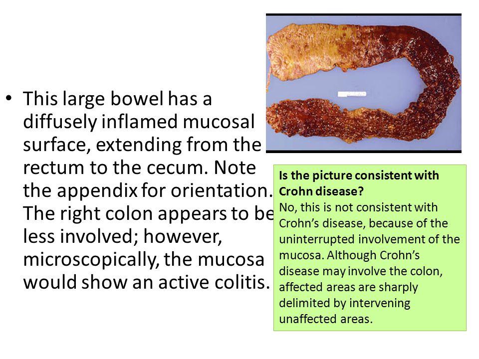 Rectum, chronic ulcerative colitis - Gross, mucosal surface