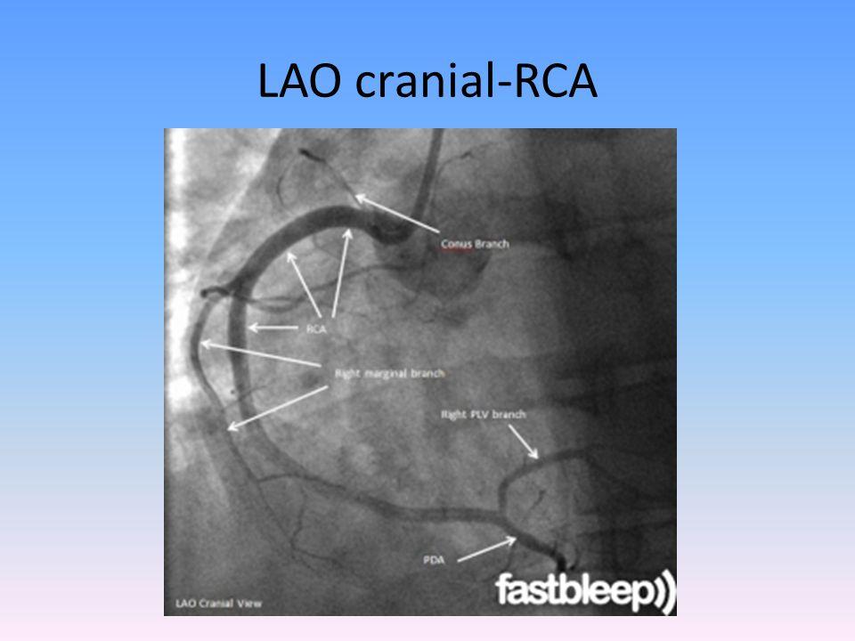 LAO cranial-RCA