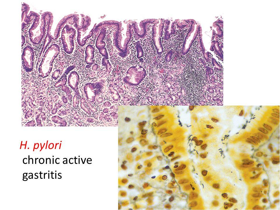 H. pylori chronic active gastritis