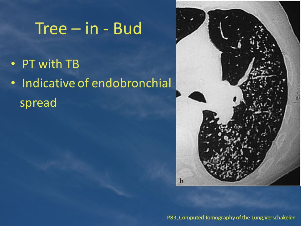 Tree – in - Bud PT with TB Indicative of endobronchial spread P83, Computed Tomography of the Lung,Verschakelen