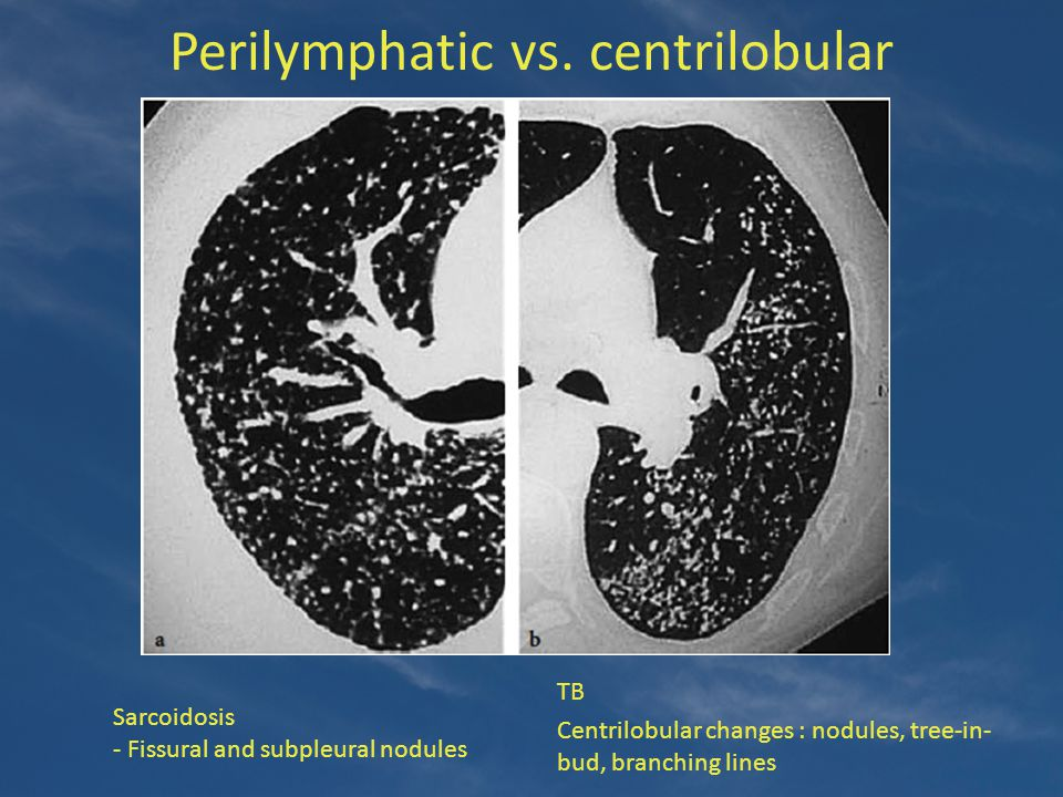 Perilymphatic vs. centrilobular TB Centrilobular changes : nodules, tree-in- bud, branching lines Sarcoidosis - Fissural and subpleural nodules