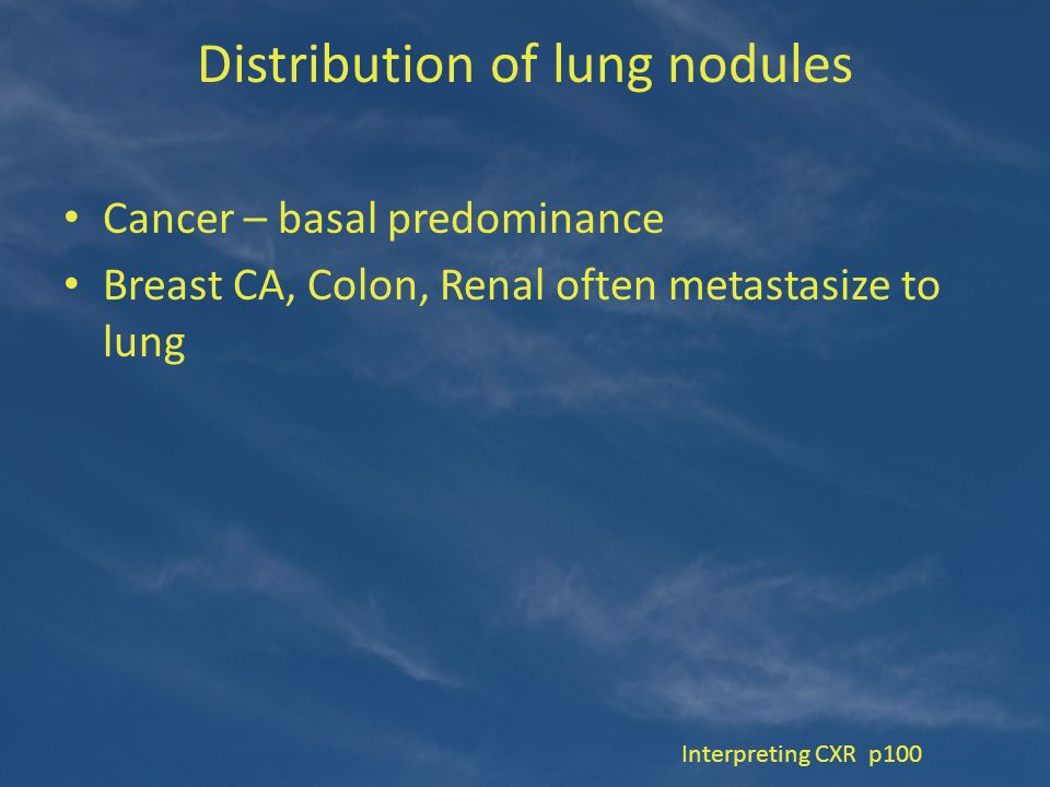 Distribution of lung nodules Cancer – basal predominance Breast CA, Colon, Renal often metastasize to lung Interpreting CXR p100