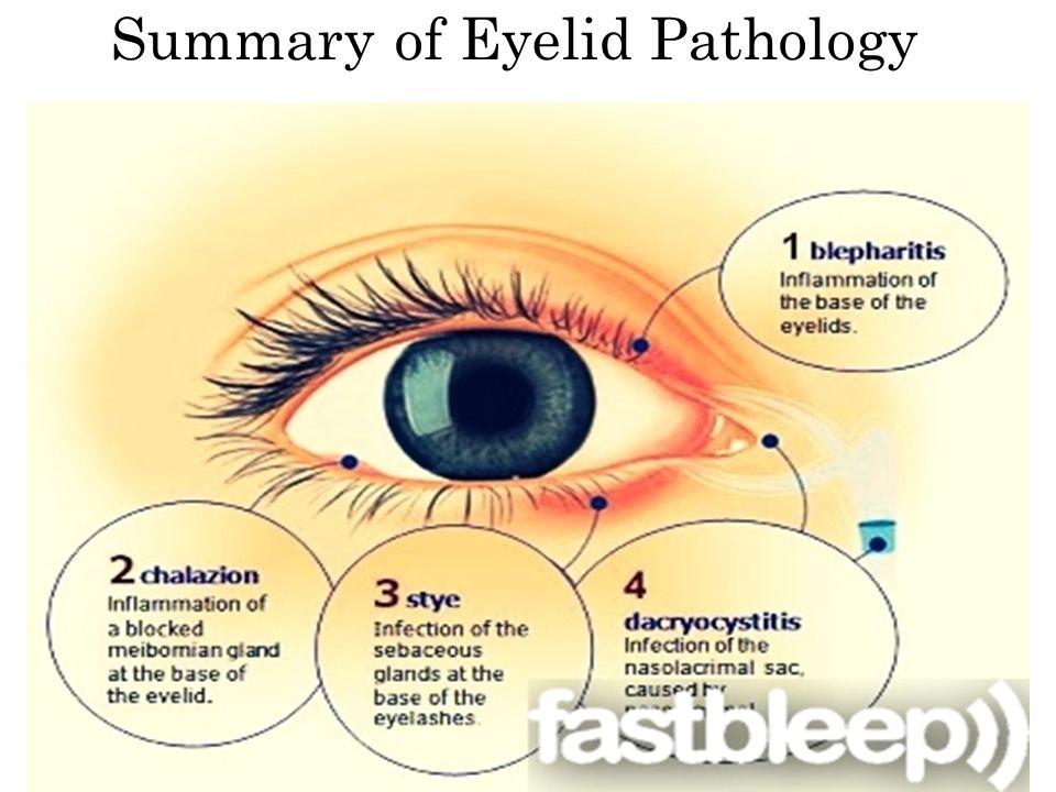 Summary of Eyelid Pathology