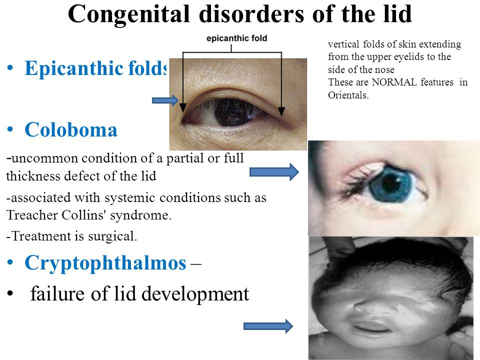 Congenital disorders of the lid Epicanthic folds Coloboma - uncommon condition of a partial or full thickness defect of the lid -associated with syste