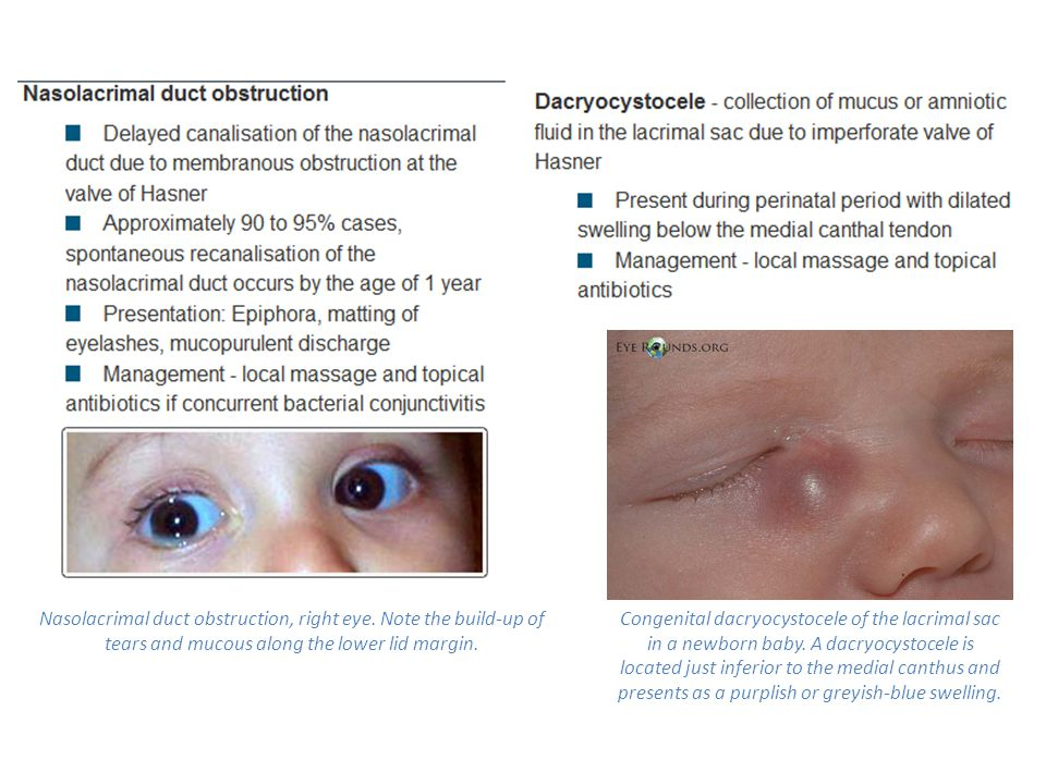 Nasolacrimal duct obstruction, right eye. Note the build-up of tears and mucous along the lower lid margin. Congenital dacryocystocele of the lacrimal