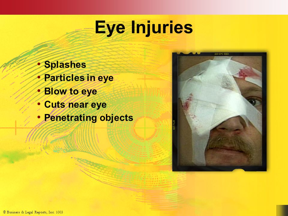 © Business & Legal Reports, Inc. 1003 Eye Injuries Splashes Particles in eye Blow to eye Cuts near eye Penetrating objects © Business & Legal Reports,