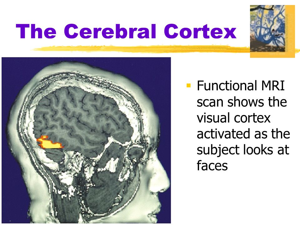  Functional MRI scan shows the visual cortex activated as the subject looks at faces